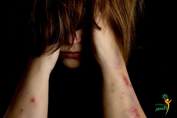 آسیب به خود و بریدن در نوجوانان