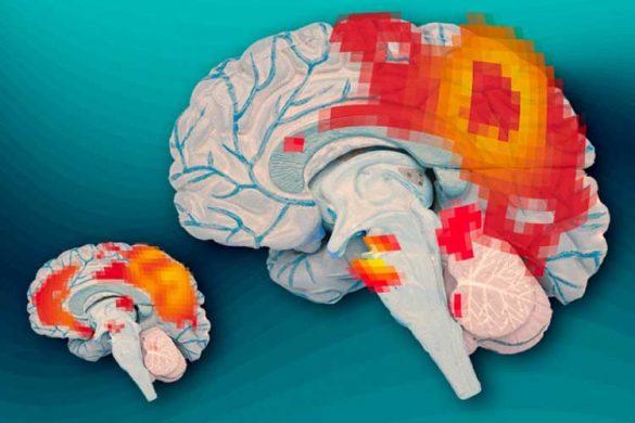 ساختار متفاوت مغز افراد بیش فعال