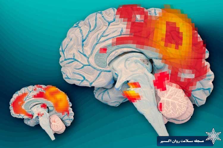 مغز-افراد-بیش-فعال.jpg