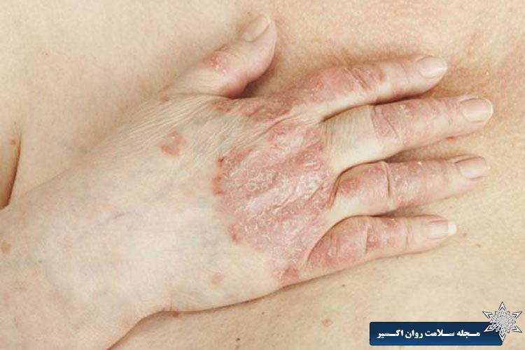 افسانه هایی درباره پسوریازیس
