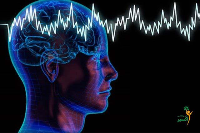 تحریک الکتریکی مغز TDCS