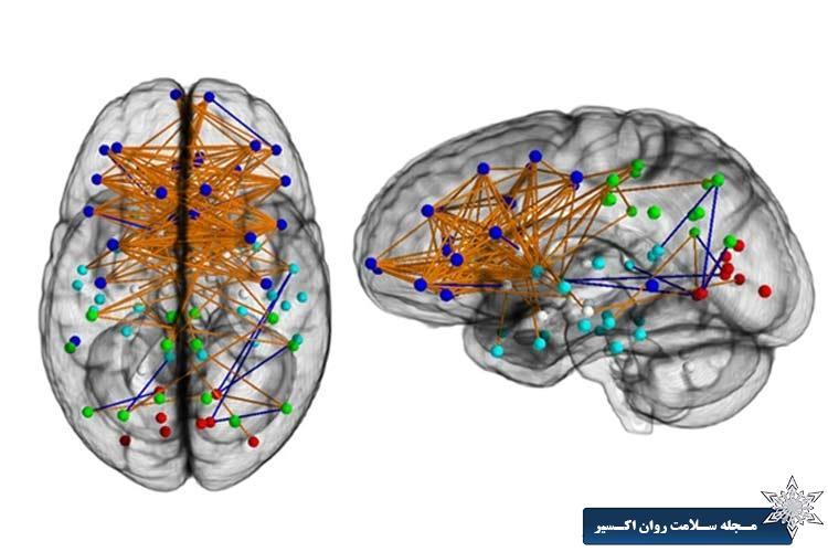 نقشه مغز